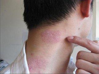 颈部牛皮癣的发病原因有哪些