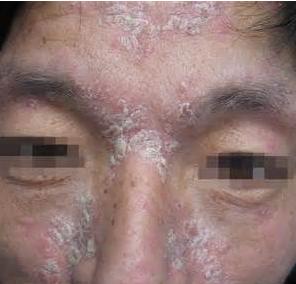 治疗脸上牛皮癣的五个技巧